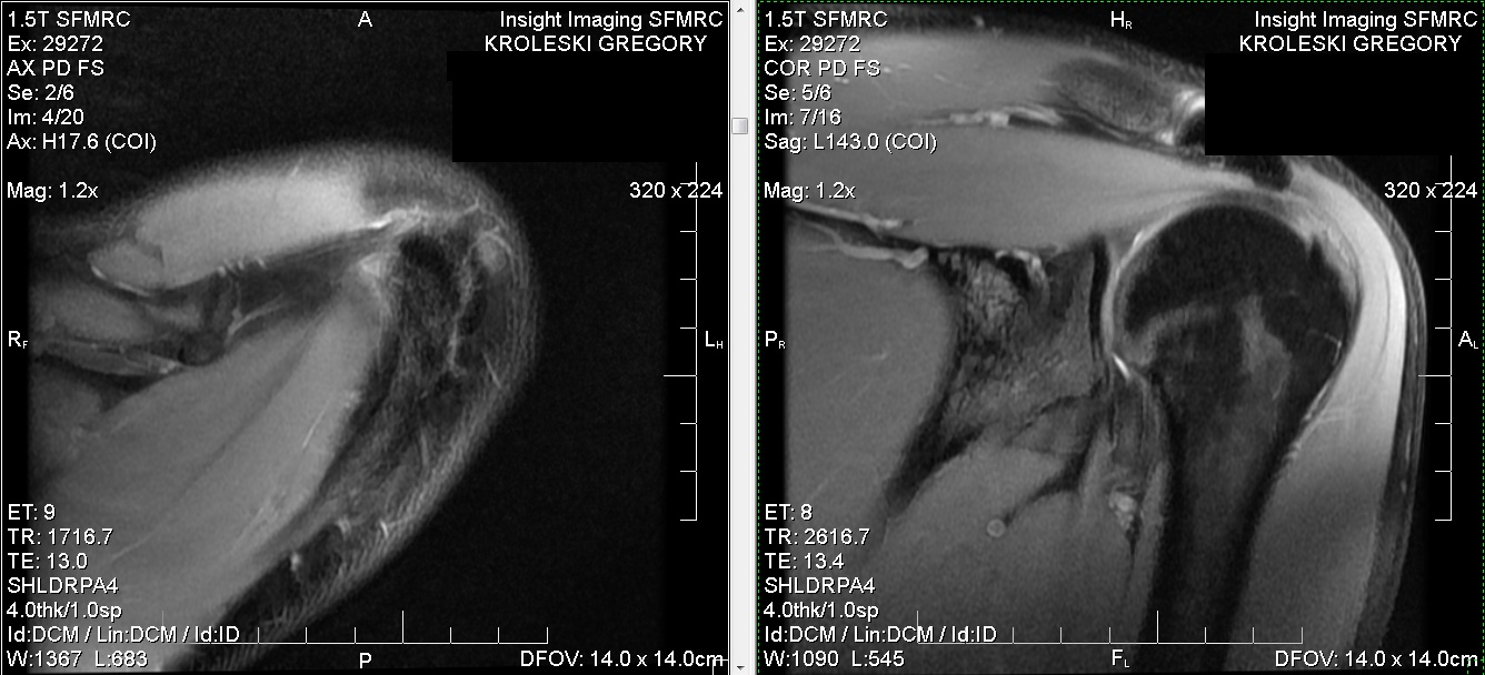 surfing-shoulder-MRI