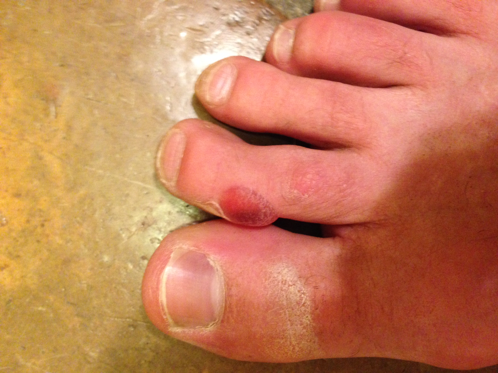ironman_arizona_blister